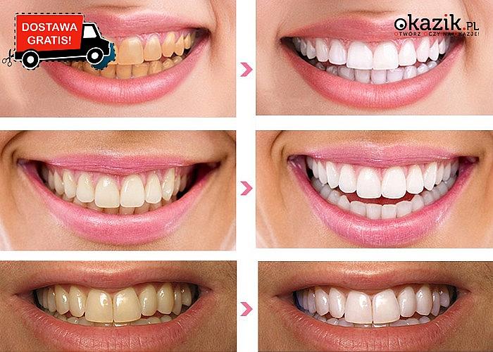 Paski do wybielania zębów. Śnieżnobiały uśmiech w 10 dni.