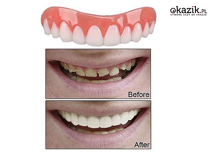 Perfect Smile! Tymczasowa nakładka na górne zęby, która pozwoli Ci w szybki i tani sposób uzupełnić braki w uzębieniu!