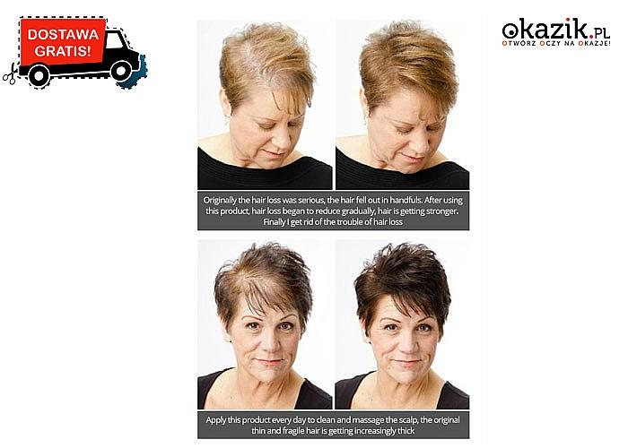 Nowość! Olejek wspomagający porost i zapobiegający wypadaniu włosów!