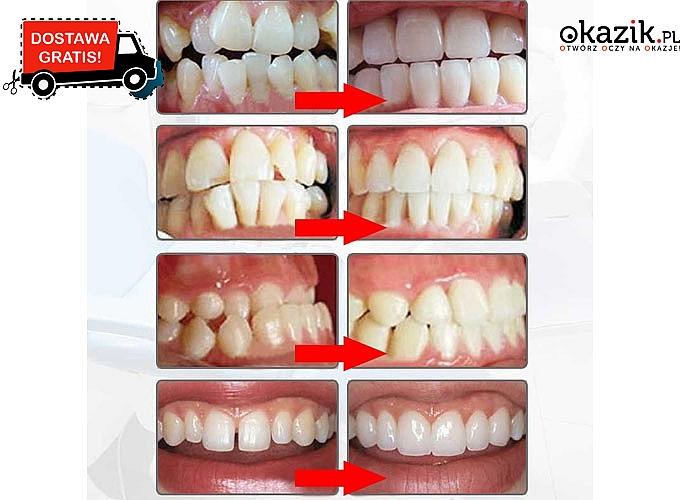 Piękny uśmiech! Silikonowe nakładki wyrównujące zęby!