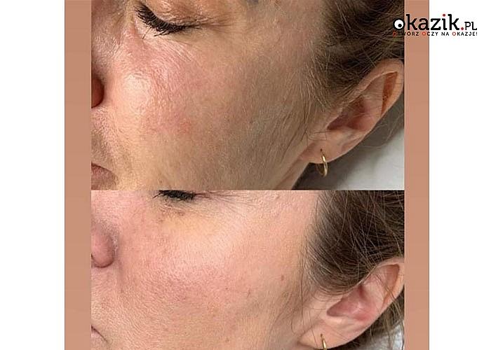 Mezoterapia igłowa to przede wszystkim nawilżenie skóry i uzupełnienie niedoborów i minerałów w jej kolejnych warstwach